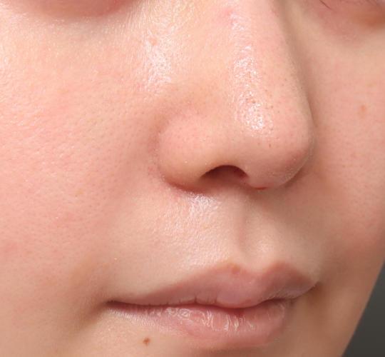 20代女性の鼻整形 After 症例写真