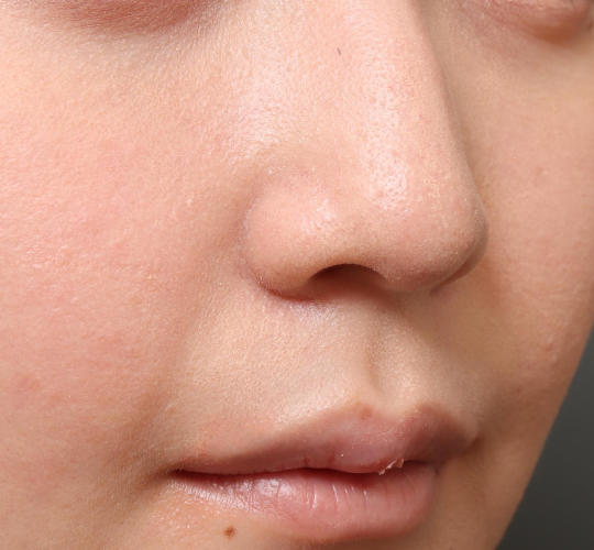 20代女性の鼻整形 Before 症例写真