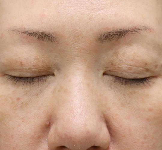40代女性の真皮線維芽細胞療法 After 症例写真