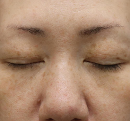 40代女性の真皮線維芽細胞療法 Before 症例写真