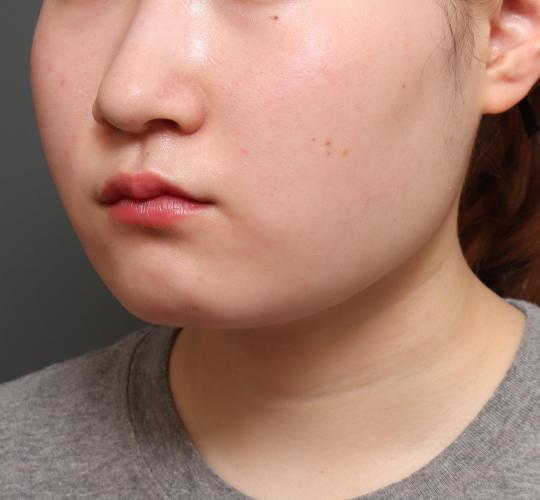 10代女性の顔の脂肪吸引  After 症例写真