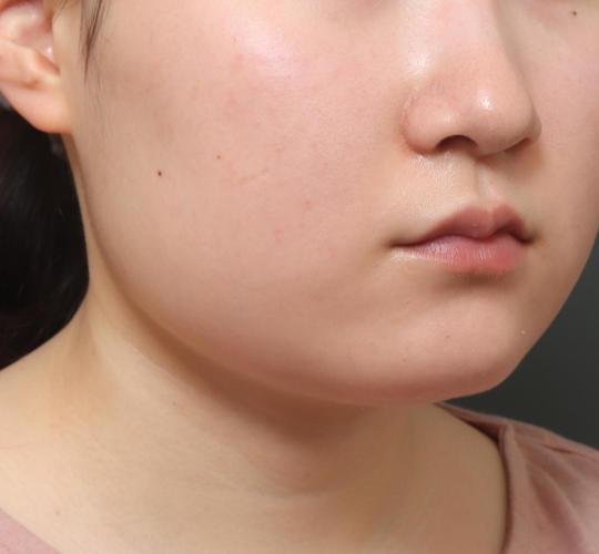10代女性の顔の脂肪吸引  Before 症例写真
