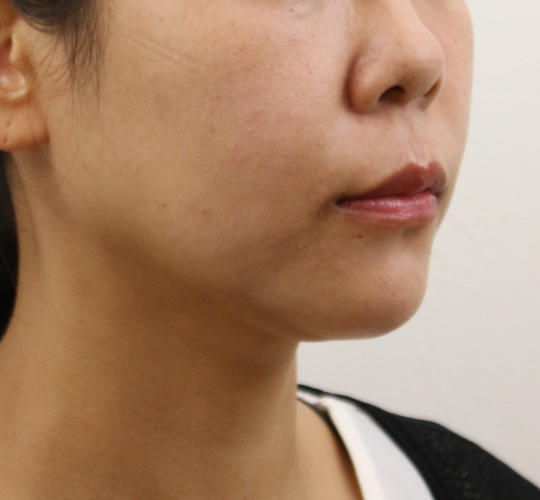40代女性のVOVリフトプレミアム After 症例写真