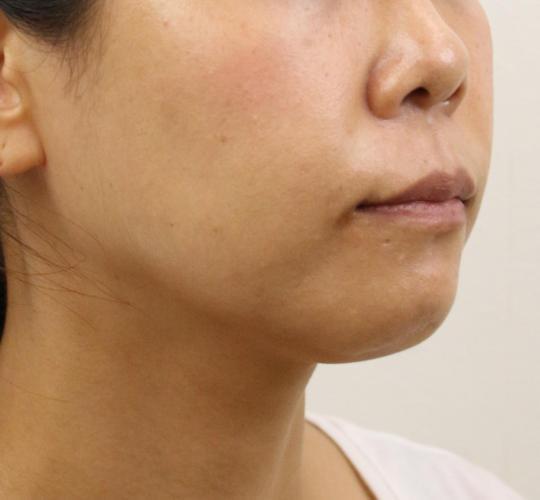 40代女性のVOVリフトプレミアム Before 症例写真
