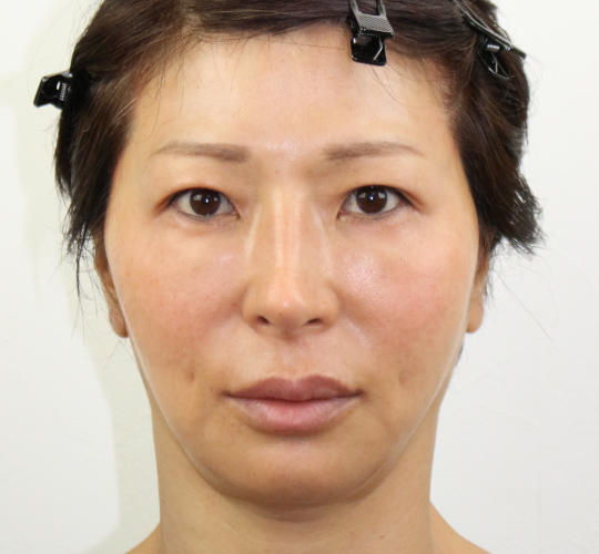 50代女性のVOVリフトプレミアム After 症例写真