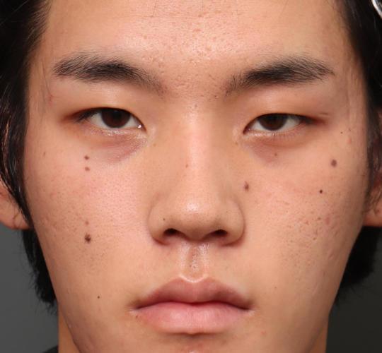 20代男性の全切開二重まぶた法 Before 症例写真