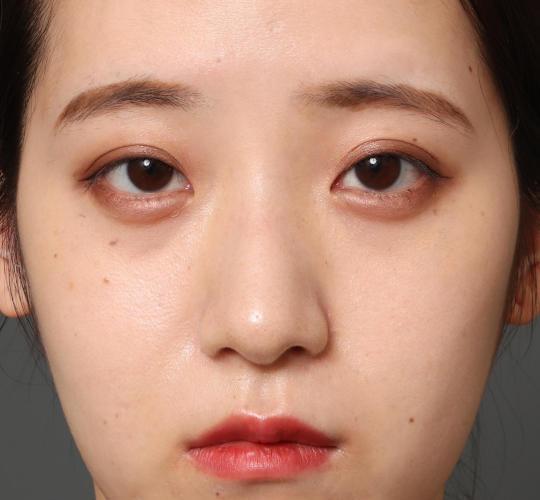 20代女性の全切開二重まぶた法 Before 症例写真