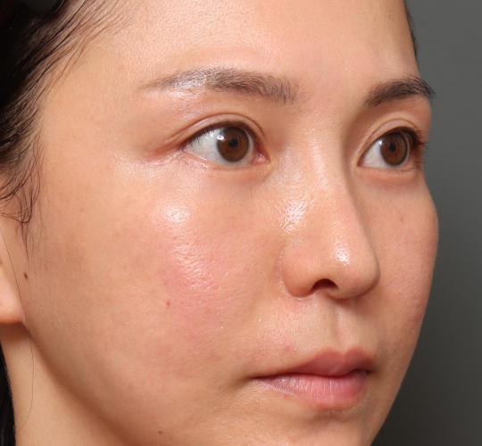 20代女性の3Dパーフェクトアイリフト  After 症例写真