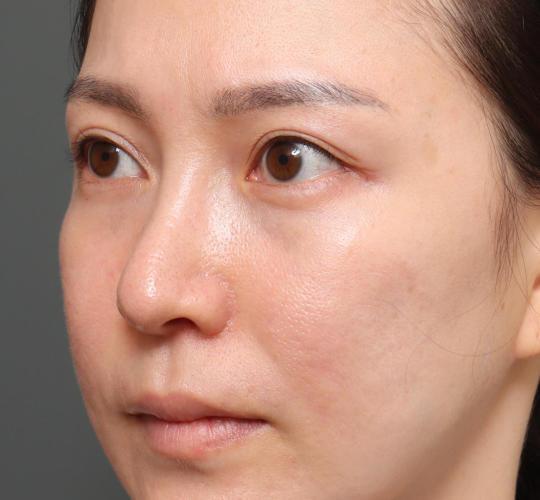 20代女性の3Dパーフェクトアイリフト  Before 症例写真