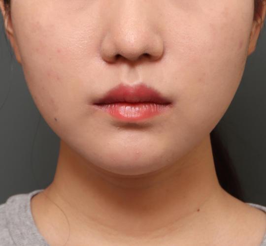 20代女性の口角挙上(スマイルリップ) After 症例写真