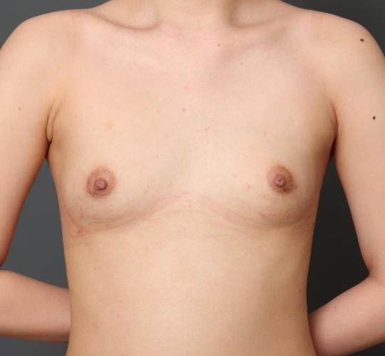10代女性のハイブリッド豊胸 Before 症例写真