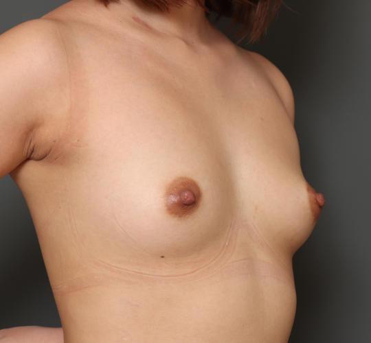 20代女性のハイブリッド豊胸 Before 症例写真