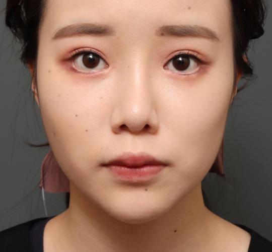 10代女性のバッカルファット除去 After 症例写真
