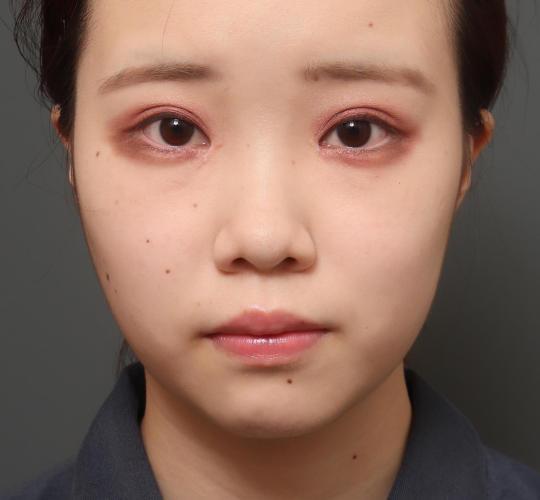 10代女性のバッカルファット除去 Before 症例写真