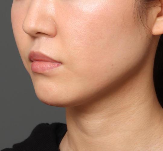 30代女性の顔の脂肪吸引  Before 症例写真