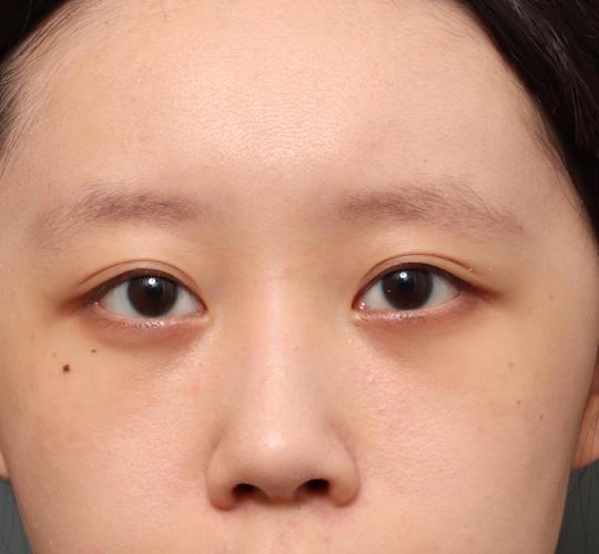 20代女性の3Dリポアイリフト  After 症例写真