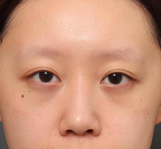 20代女性の3Dリポアイリフト  Before 症例写真