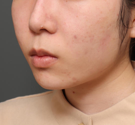 20代女性の口角挙上(スマイルリップ) Before 症例写真