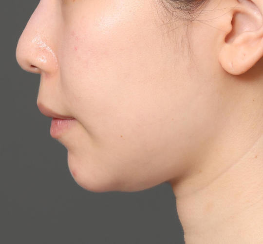 20代女性の顔の脂肪吸引  Before 症例写真