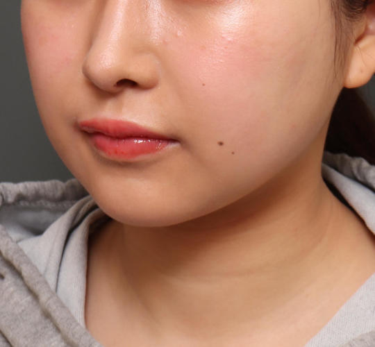 20代女性のメーラーファット除去 Before 症例写真