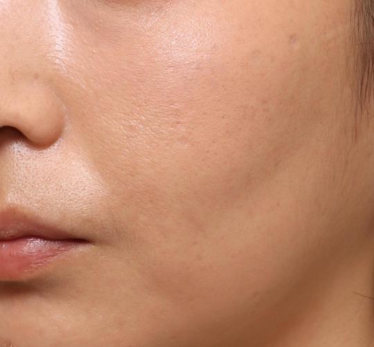 30代女性のメーラーファット除去 After 症例写真