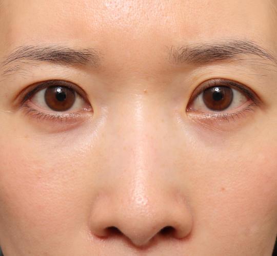 30代女性の眉下切開法 Before 症例写真