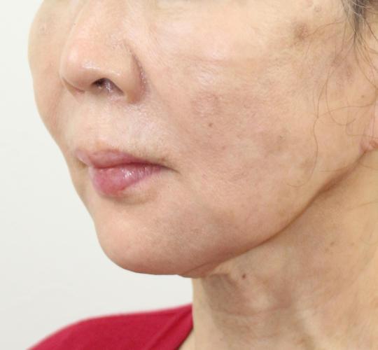 60代女性のVOVリフトプレミアム After 症例写真