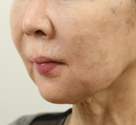 60代女性のVOVリフトプレミアム Before 症例写真