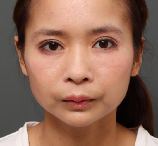 20代女性のアゴプロテーゼ(アゴ整形) After 症例写真
