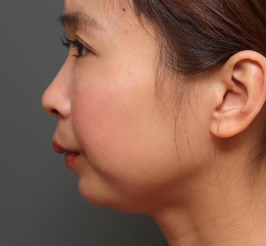 20代女性のアゴプロテーゼ(アゴ整形) Before 症例写真