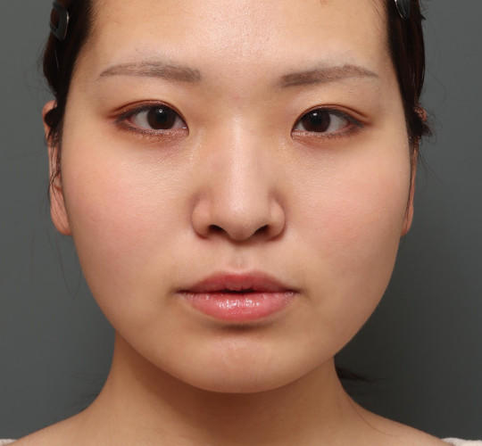 20代女性の二重埋没法 Before 症例写真