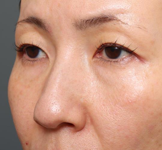 40代女性のハムラ法(目の下のたるみ取り) Before 症例写真