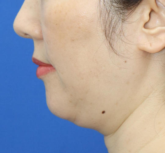 40代女性の顔の脂肪吸引  Before 症例写真