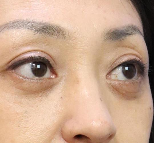 40代女性のハムラ法(目の下のたるみ取り) After 症例写真