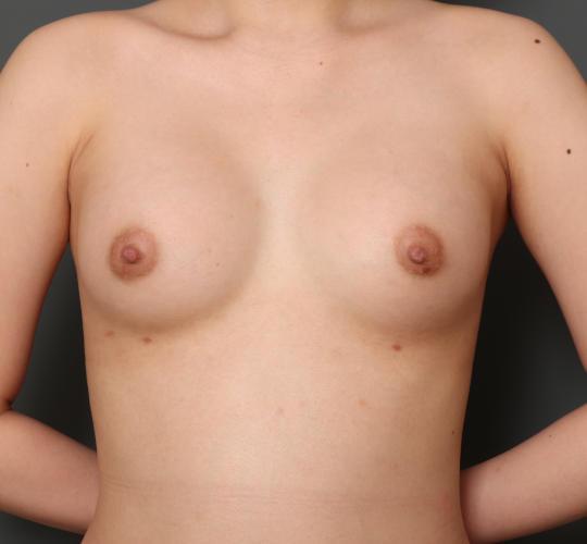 10代女性のハイブリッド豊胸 After 症例写真