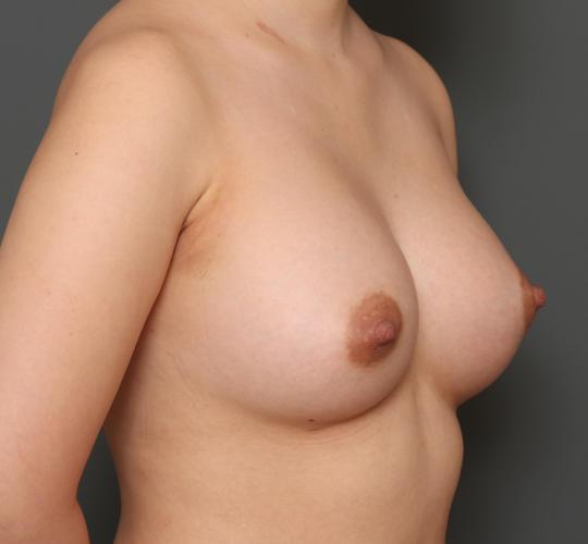 20代女性のハイブリッド豊胸 After 症例写真