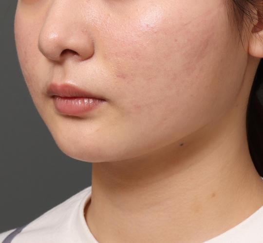 20代女性の顔の脂肪吸引  After 症例写真