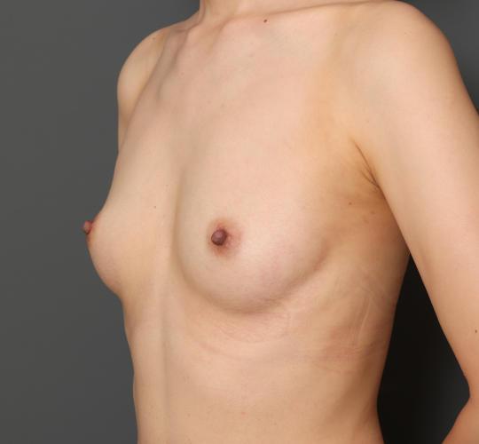 30代女性の豊胸バッグベラジェル Before 症例写真