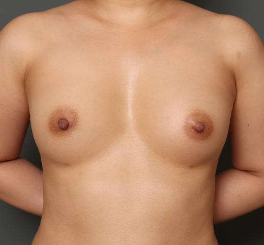 30代女性のピュアグラフト豊胸 After 症例写真