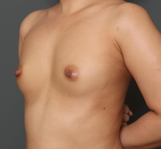 30代女性のピュアグラフト豊胸 Before 症例写真