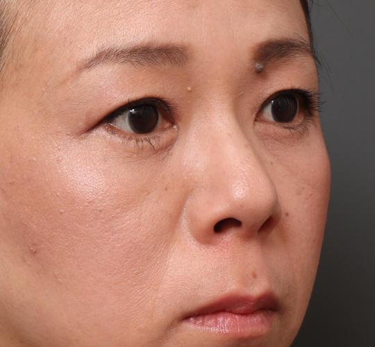 40代女性の3Dパーフェクトアイリフト  After 症例写真