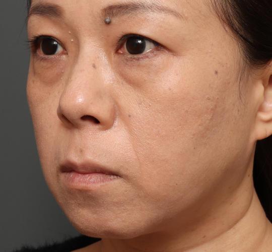 40代女性の3Dパーフェクトアイリフト  Before 症例写真