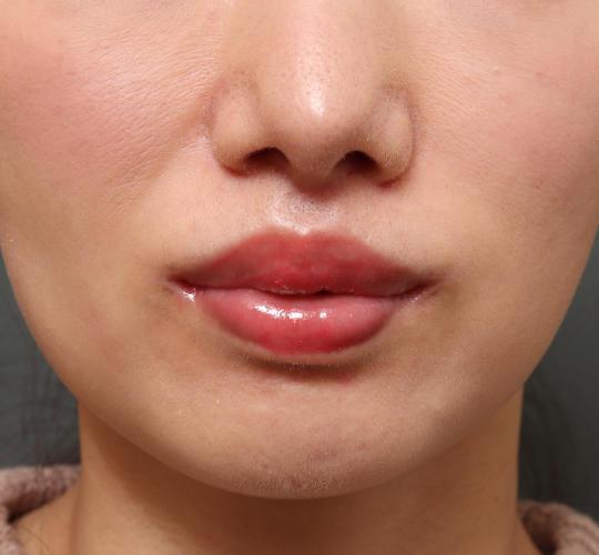 30代女性の人中短縮(リップリフト) After 症例写真
