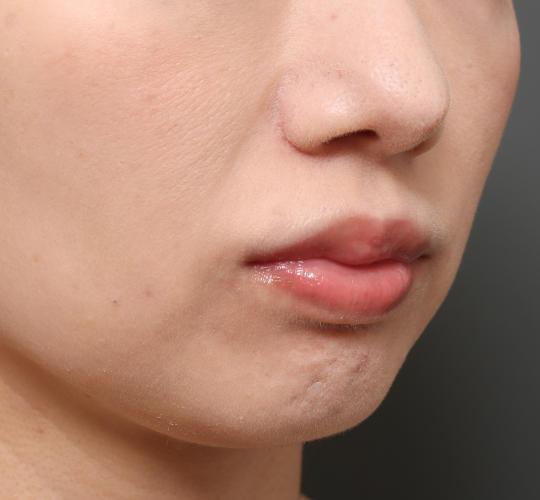 30代女性の人中短縮(リップリフト) Before 症例写真