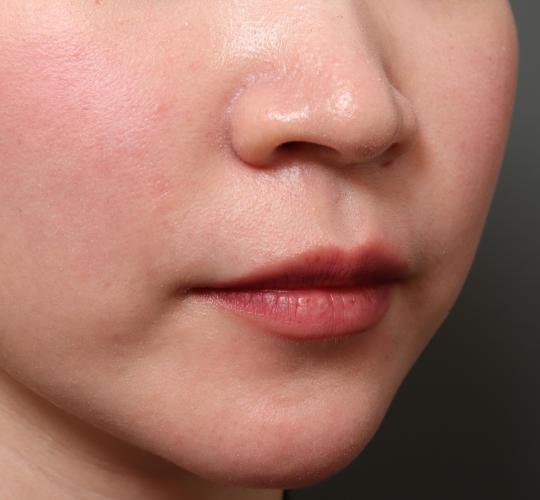 20代女性のM字リップ形成 Before 症例写真