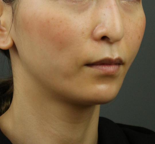 30代女性のVOVリフトプレミアム After 症例写真