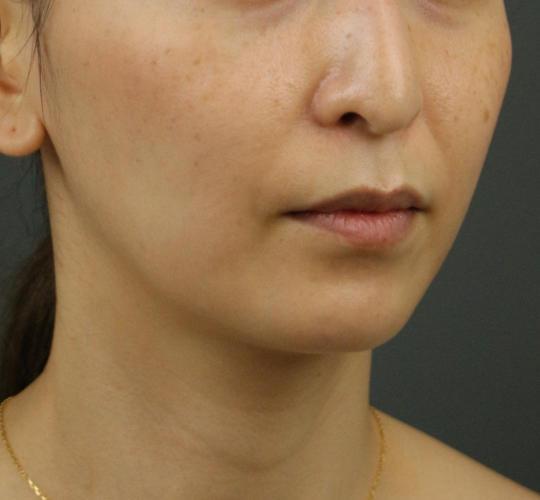30代女性のVOVリフトプレミアム Before 症例写真