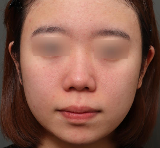 20代女性の肌管理毛穴スリークスキン(ダーマペン4) Before 症例写真