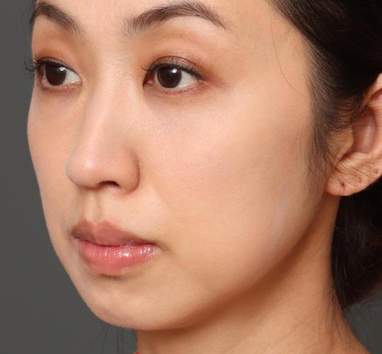 40代女性の3Dリポアイリフト  Before 症例写真