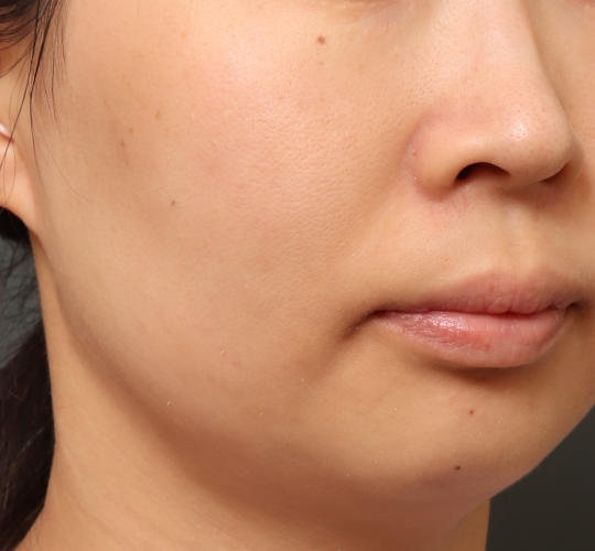 30代女性の肌管理毛穴スリークスキン(ダーマペン4) After 症例写真